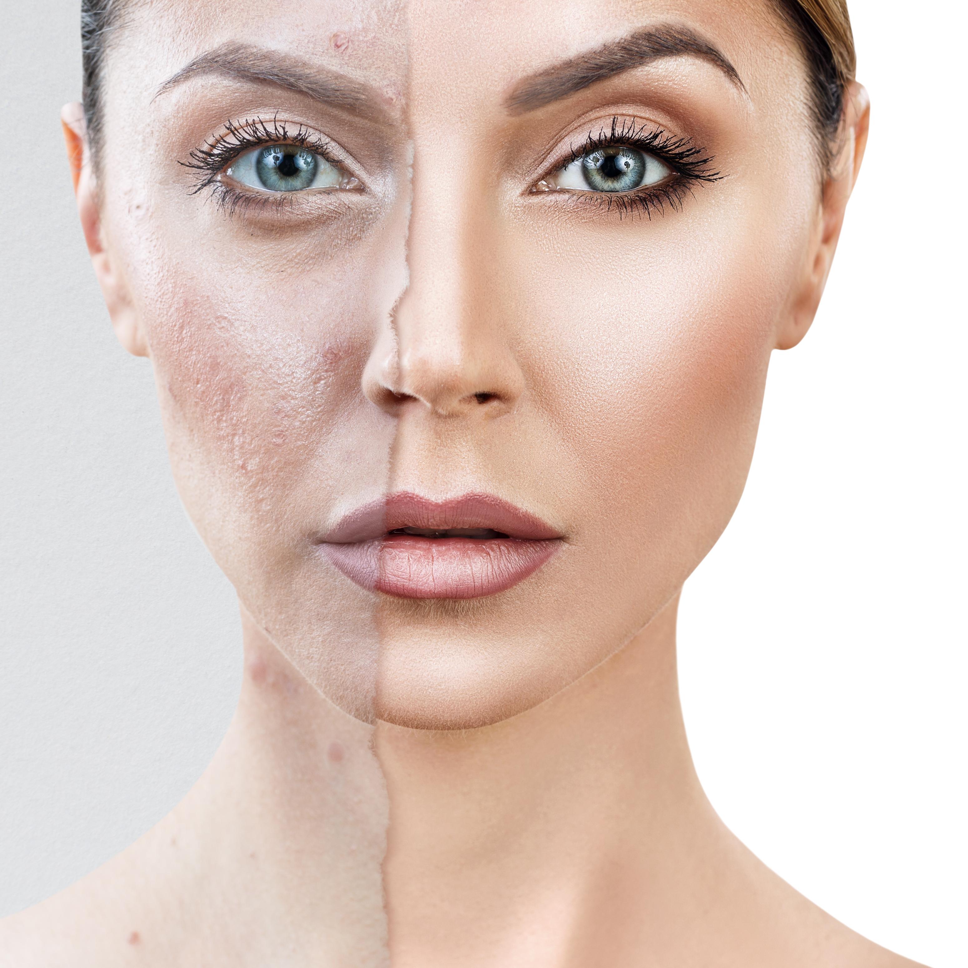 O que deve usar para tratar da acne em adultos? Métodos caseiros e os melhores cosméticos